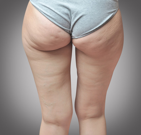 cellulite symptoms | cellulite treatment | order birth control online